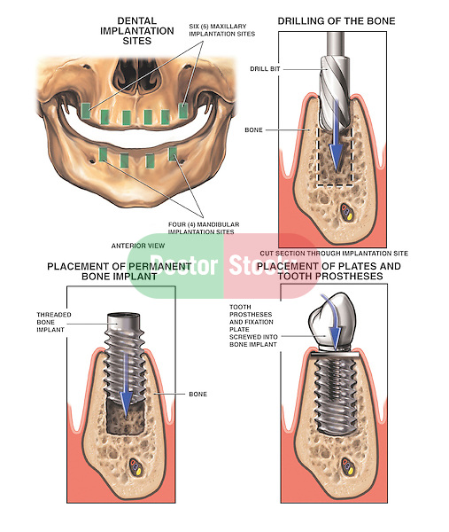 Dental (Tooth) Implant Surgery. Shows dentistry procedure for the correct placement of an interosseous dental implant in the mandible (jaw bone) of an edentulous jaw.