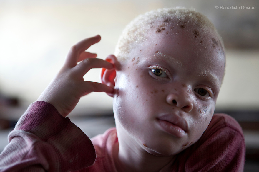 June 15, 2010 - Dar Es Salaam, Tanzania - Mary Edison Mwingila, a young albino girl during a theater practice. Albinos and relatives performs during a theater practice in preparation for an upcoming show organized by the Tanzania Albino Society Kinondoni District  in order to spread awarness on albinos issues in Tanzania. Tanzania is believed to have Africa' s largest population of albinos, a genetic condition caused by a lack of melanin in the skin, eyes and hair and has an incidence seven times higher than elsewhere in the world. Over the last three years people with albinism have been threatened by an alarming increase in the criminal trade of Albino body parts. At least 53 albinos have been killed since 2007, some as young as six months old. Many more have been attacked with machetes and their limbs stolen while they are still alive. Witch doctors tell their clients that the body parts will bring them luck in love, life and business. The belief that albino body parts have magical powers has driven thousands of Africa's albinos into hiding, fearful of losing their lives and limbs to unscrupulous dealers who can make up to US$75,000 selling a complete dismembered set. The killings have now spread to neighboring countries, like Kenya, Uganda and Burundi and an international market for albino body parts has been rumored to reach as far as West Africa. Photo credit: Benedicte Desrus