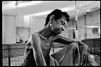 Siem Reap, Cambodia, December 2006..Ti?© Va Eng, 62, lives in very precarious conditions among dozens of TB patients  in insalubrious barracks at the back of the Provincial Hospital compound. TB is endemic in the region, fueled by poverty, malnutrition, inadequate hygiene and the spreading of HIV/AIDS. The percentage of drug-resistant TB strains is on a sharp rise due to inadequate treatments.