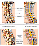 Spinal Cord Injury - Cervical Subluxation (Neck Vertebrae Overlap) and Bilateral Facet Lock. This medical exhibit compares normal sagittal \views of the cervical spine with images showing cervical subluxation, bilateral facet lock, and compression of the spinal cord at the C6-7 level. Continued pressure on the spinal cord could result in temporary or permanent paralysis, including paraplegia or quadraplegia.