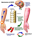 Post-traumatic Complex Regional Pain Syndrome (CRPS) of the Upper Extremity and Hand