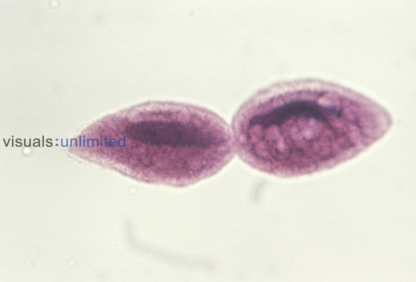 Fission in the Ciliate Protozoan (Paramecium), 7 of 10. LM