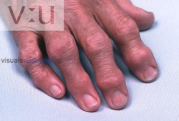 Osteoarthritis is a progressive, degenerative joint disease, the most common form of arthritis, especially in older persons. The disease is thought to result not from the aging process but from biochemical changes and biomechanical stresses affecting articular cartilage. It is also called osteoarthrosis deformans. This picture shows deformed joints of the hands, a common manifestation of the disease.