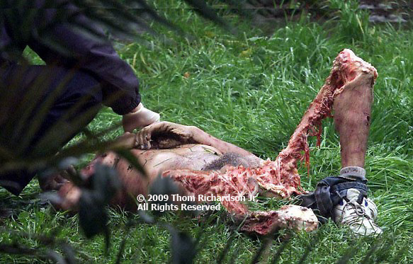 Bear Attack Victim