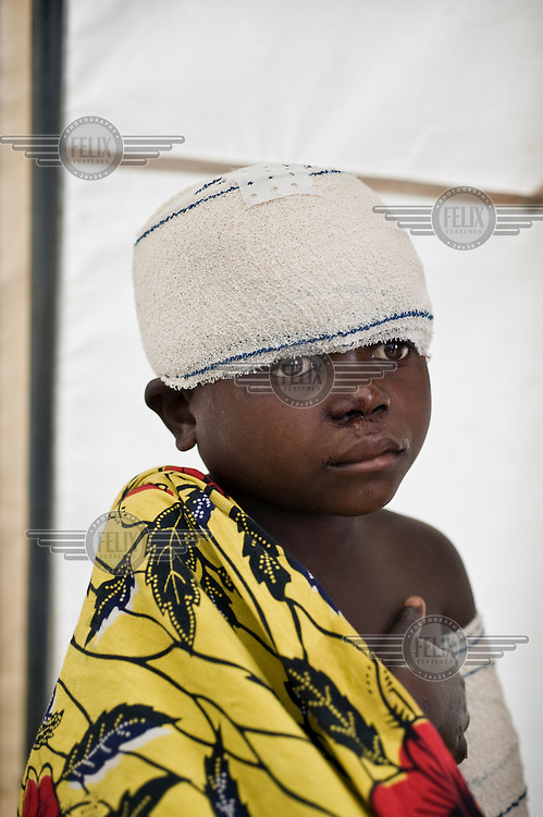 A child is treated inside the mobile clinic of the Medecins Sans Frontieres (MSF) in the Kibati camp for displaced people. Thousands of people have been forced to leave their homes after renewed fighting in the region.