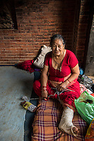 Nepal, Bhaktapur. Earthquake damage 2015. Woman with a broken leg.