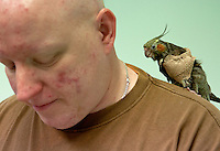 """Cherokee,"" a cockatiel with a broken wing, rests on owner Jeff Javorsky's shoulder after an examination at the Avian Health Clinic on Aug. 17, 2013. The bird eventually had to have its wing amputated."