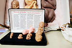 Fetal models on display in an examination room at the Pregnancy Aid Clinic in Hapeville, Georgia on November 7, 2013.