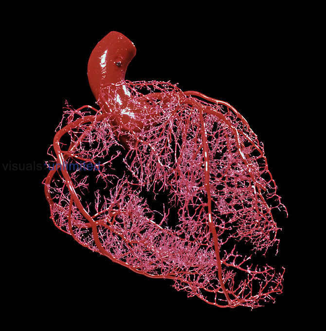 Resin cast of heart, coronary vessels only.