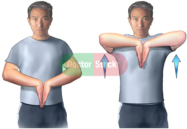 This exhibit features multiple images of a male showing the proper technique for the reverse prayer stretch, an exercise designed to stretch the forearms, wrists and fingers.