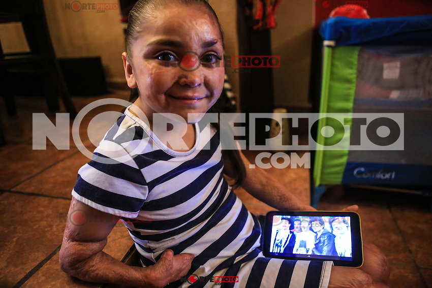 Dana Paola Villareal, a survivor of the fire at the ABC Nursery on June 5, 2009 in Hermosillo Mexico, where 49 babies died. She lives without hands who lost that day also with various damage to your body and face.