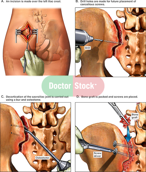 This medical exhibit illustrates the decortication and the surgical fixation of the sacroiliac joint.