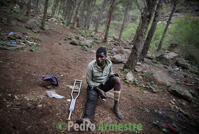 Ahmed is from Guinea Conakry and he is 19 years old. The last time that he tried to jump the fence he was gravely injured: The Moroccan soldiers struck him in the leg. Near 400 sub-Saharan immigrants survive in the mount Gurugú, in Morocco, waiting of an opportunity to jump the fence that separates them from Melilla, Spain, and from their dream of being employed at Europe. Many of them, between which there are minors, denounce violence from the police and the Moroccan army. October 28, 2012. © Pedro ARMESTRE