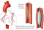 This full color medical illustration depicts a balloon angioplasty using three illustrations.  The first graphic shows an orientation to the left interventricular branch of the left coronary artery of the heart from an anterior (front) view. A separate enlarged image, from a sagittal (cut-away) view, identifies a deflated balloon in the artery. The third illustration reveals an inflated balloon compressing plaque against artery walls.