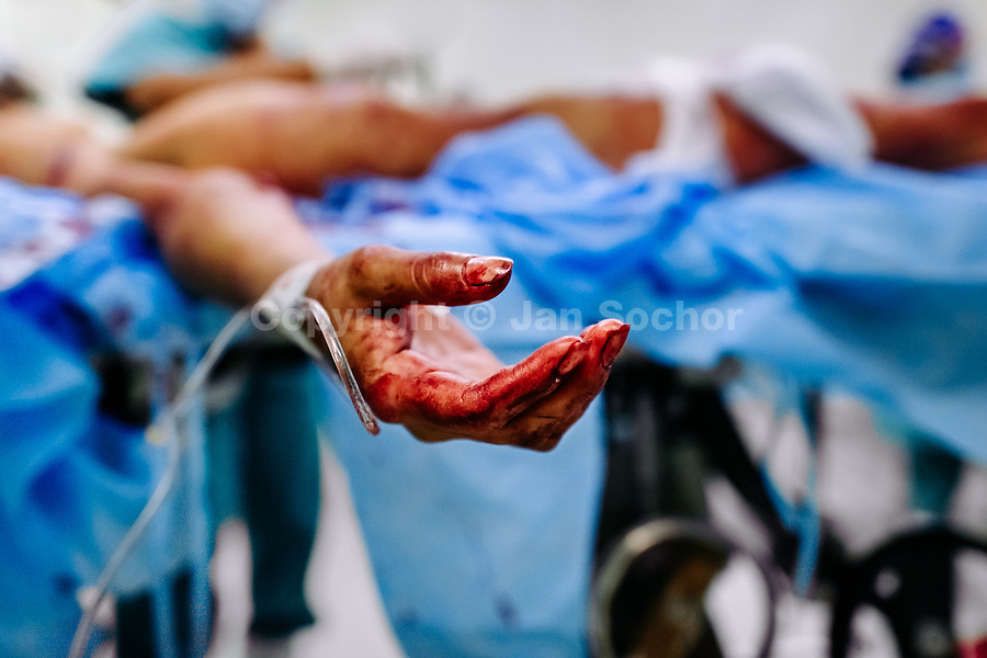 A bloodied hand of a young gang member, with three gunshot wounds, is seen during the life-saving surgery in the operating room of a public hospital in San Salvador, El Salvador, 14 February 2015.