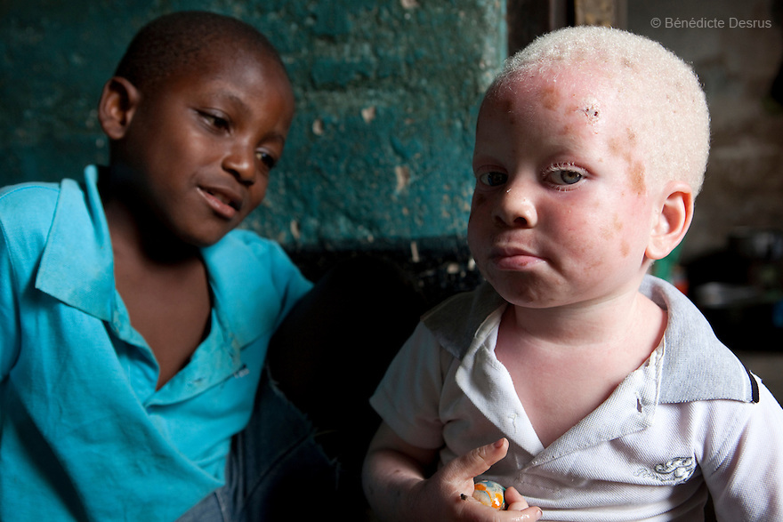June 30, 2010 - Dar es Salaam, Tanzania - Yusufu Sereman plays with a friend at home. Mwanahawa Yusufu is a 27 year old woman without albinism. She lives with her 2 year old albino son, Yusufu Sereman, in a 6 m2 rented room in Dar es Salaam. When she gave birth to Yusufu, her husband got very angry and left her saying that she had slept with a musungu, a white man. Since then, she has never heard from him. Mwanahawa survives as a single parent roasting and selling Cassava and other small food items. Her son Selemani already has badly damaged skin from exposure to the sun, but she cant get him treat because she has difficulties to pay for the treatments. Usually developing by a very young age a facial rash of dark melanomas is often the precursor of the skin cancer that kills so many albinos in early adulthood. Albinism is a recessive gene but when two carriers of the gene have a child it has a one in four chance of getting albinism. Tanzania is believed to have Africa' s largest population of albinos, a genetic condition caused by a lack of melanin in the skin, eyes and hair and has an incidence seven times higher than elsewhere in the world. Over the last three years people with albinism have been threatened by an alarming increase in the criminal trade of Albino body parts. At least 53 albinos have been killed since 2007, some as young as six months old. Many more have been attacked with machetes and their limbs stolen while they are still alive. Witch doctors tell their clients that the body parts will bring them luck in love, life and business. The belief that albino body parts have magical powers has driven thousands of Africa's albinos into hiding, fearful of losing their lives and limbs to unscrupulous dealers who can make up to US$75,000 selling a complete dismembered set. The killings have now spread to neighboring countries, like Kenya, Uganda and Burundi and an international market for albino body parts has been rumored to reach as far as West Africa.