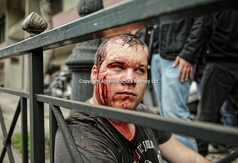 Pictured: A protester with a bloodied head rests on the pavement by the statue of Harry S. Truman in Vassileos Georgiou Street in central Athens, Greece. Monday 16 April 2018<br /> Re: Clashes broke out between protesters and the police when members of the Greek Communist Party (KKE) attempted to vandalise the statue of former US President Harry S. Truman, during a protest against the bombing of Syria by the US and its allies.