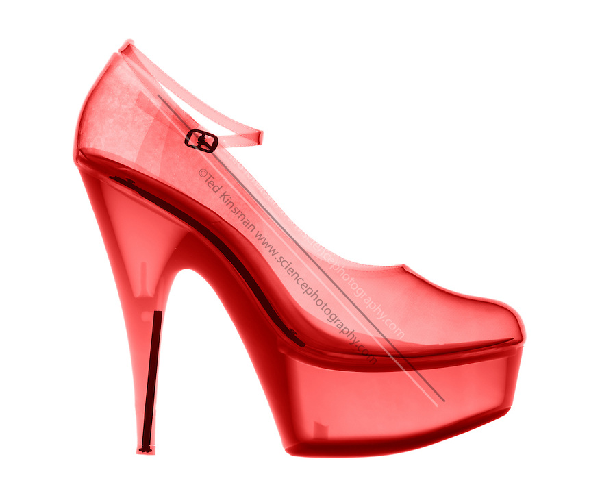 An X-ray of a High Heel Shoe.  These high heel shoes often cause foot problems