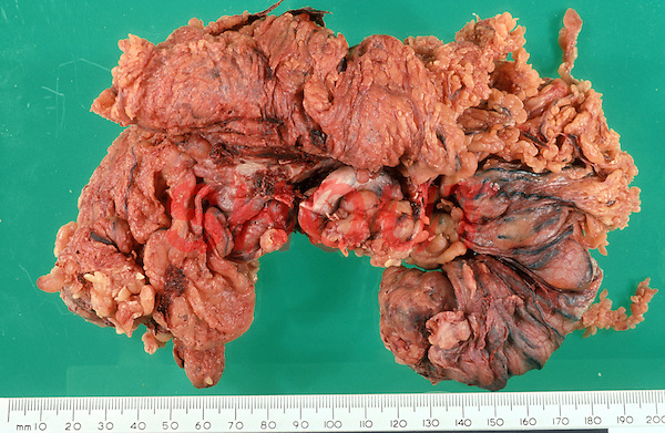 Pathology specimen which has been surgically removed. Carcinoma of the colon. This image may only be used to portray the subject in a positive manner..©shoutpictures.com..john@shoutpictures.com
