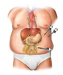 Gastric band slipped forming a pouch and is cause of GERD. Bariatric surgery is performed to correct position of gastric band, here it shows location of portals and placement of trocars
