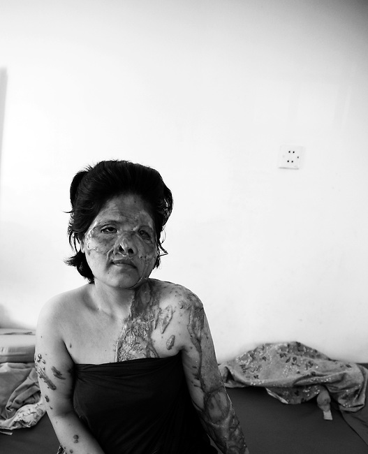 Keo Srey Vy was the victim of a brutal acid attack in January 2009 by the hands of her brother-in-law . Srey Vy received injuries to her face, eyes, shoulders, left hand, and the left side of her back. She believes that her action of filing a law suit against her brother-in-law for selling his two years old daughter Socheta cause the attack.