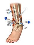 Fibula & tibial fracture fixations