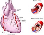 Normal vs. Artherosclerotic (Blocked) Coronary Artery