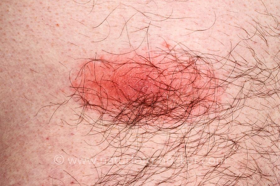 Zecke, Holzbock, Saugstelle auf menschlicher Haut, Zecken, Ixodes ricinus, castor bean tick, European castor bean tick, European sheep tick, tick, ticks