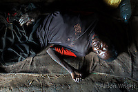 Kitgum patient, David Olworo