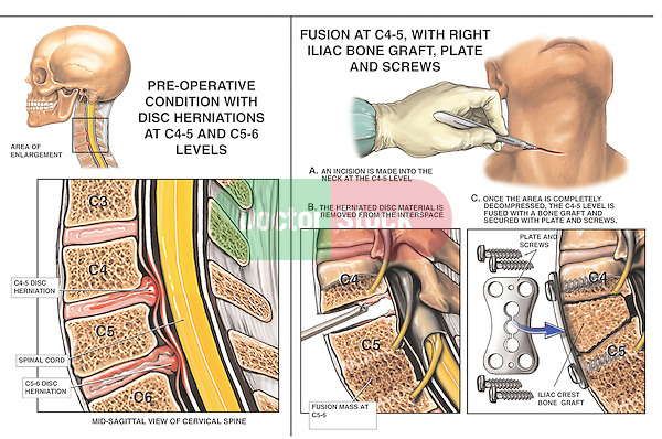 Whiplash Injury - C4-5 and C5-6 Disc Protrusions with Spinal Fusion Surgery. Surgical steps:  1. Initial condition prior to surgery revealing cervical disc herniations at C4-5 and C5-6 with impingement of spinal cord elements; 2. Incision into the neck at the C4-5 level; 3. Discectomy (diskectomy) and decompression of the neural elements at C4-5 with preparation for graft material (C5-6 is shown already fused); 4. Placement of bone graft with application of fusion plate and screws.