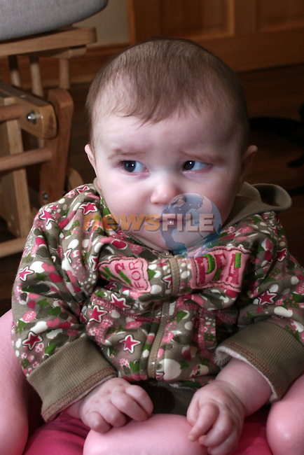 Baby Gretta Kieran Cullen who was born with a condition known as Septo-Optic Dysplasis  (Morsiers Syndrome)...Photo NEWSFILE/Jenny Matthews.(Photo credit should read Jenny Matthews/NEWSFILE)....This Picture has been sent you under the condtions enclosed by:.Newsfile Ltd..The Studio,.Millmount Abbey,.Drogheda,.Co Meath..Ireland..Tel: +353(0)41-9871240.Fax: +353(0)41-9871260.GSM: +353(0)86-2500958.email: pictures@newsfile.ie.www.newsfile.ie.FTP: 193.120.102.198.