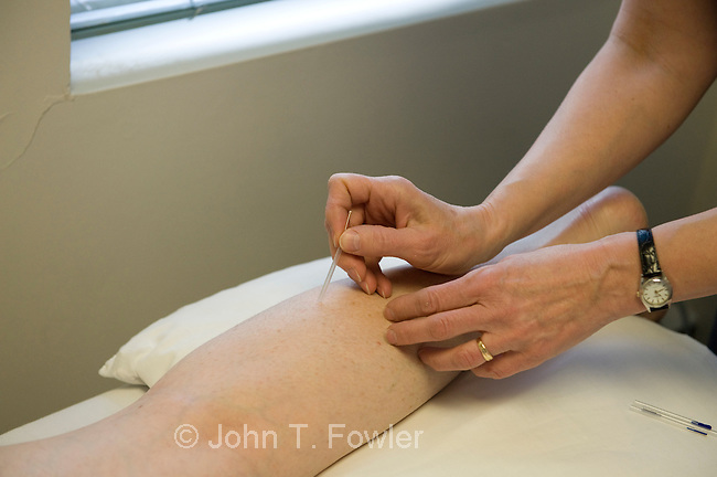 Acupuncture therapist applying needles to patient suffering from back/leg arthritis pain and fibromyalgia