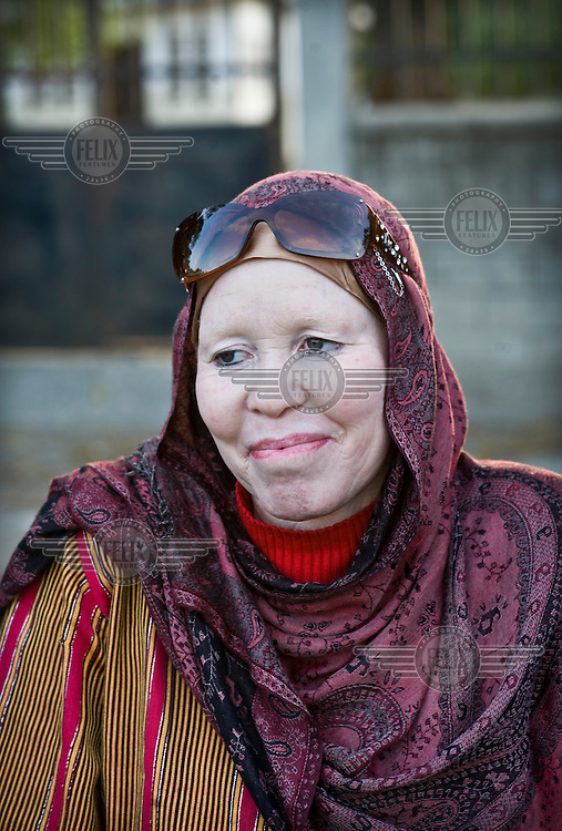 Madame Al-Shaymaa J. Kwegyir, Tanzania's first albino Member of Parliament. The nomination of an albino MP is a first step in the fight against the widespread belief that albinism is the result of a curse. Discrimination against albinos is a serious problem throughout sub-Saharan Africa, but recently in Tanzania albinos have been killed and mutilated, victims of a growing criminal trade in albino body parts fuelled by superstition and greed. Limbs, skin, hair, genitals and blood are believed by witch doctors to bring good luck, and are sold to clients for large sums of money, carrying with them the promise of instant wealth.