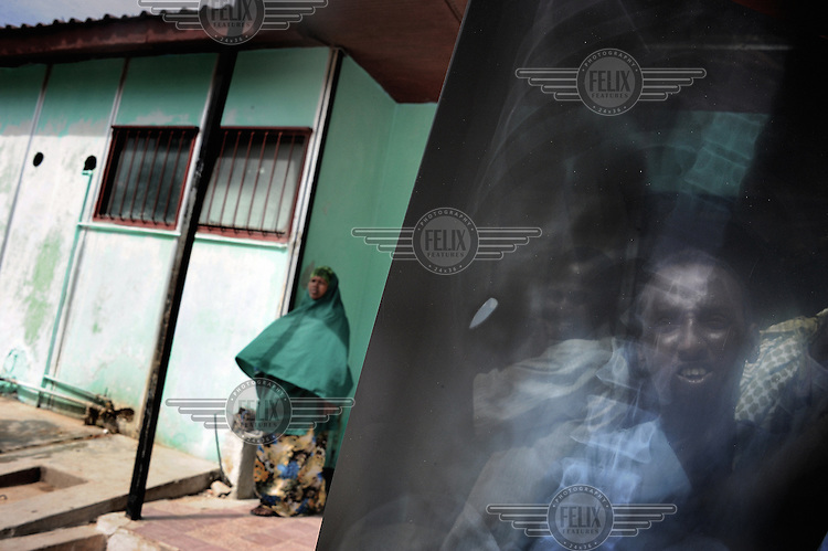 Mogadishu/Somalia 2012 -  The X-ray of a man who got shot by a stray bullet in Badbadoo, the largest IDP camp in the city, is inspected by one of his relatives.