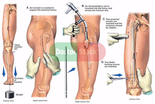 Accurately depicts internal fixation of a right femoral fracture using an intramedullary rod, and lower leg injuries requiring a tibial traction pin. Shows the fracture sites and location of the tibial traction pin. Surgery steps: A. Incision made into the right leg; B. An intramedullary nail being hammered into the femur across the fracture site in the mid-thigh; C. Proximal and distal fixation screws inserted into intramedullary nail, along with the incision site closed by surgical staples.