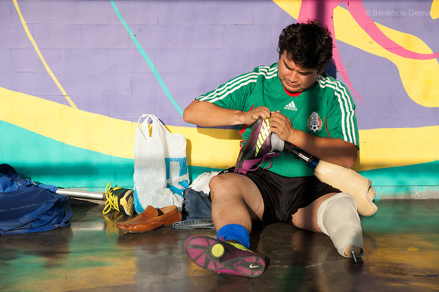 "Osman Cristobal González Ruiz, 31, a player from Guerreros Aztecas, removes his prosthetic leg before training with his team in Mexico City, Mexico on June 12, 2014. Osman lost his left leg in an electrical accident at work when he was 23. Guerreros Aztecas (""Aztec Warriors"") is Mexico City's first amputee football team. Founded in July 2013 by five volunteers, they now have 23 players, seven of them have made the national team's shortlist to represent Mexico at this year's Amputee Soccer World Cup in Sinaloa this December. The team trains twice a week for weekend games with other teams. No prostheses are used, so field players missing a lower extremity can only play using crutches. Those missing an upper extremity play as goalkeepers. The teams play six per side with unlimited substitutions. Each half lasts 25 minutes. The causes of the amputations range from accidents to medical interventions – none of which have stopped the Guerreros Aztecas from continuing to play. The players' age, backgrounds and professions cover the full sweep of Mexican society, and they are united by the will to keep their heads held high in a country where discrimination against the disabled remains widespread. (Photo by Bénédicte Desrus)"