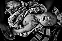 A dying child was treated and sent home with his mother. The inability to make studies in the hospital leaves him undiagnosed, now he must take care of himself in order to survive. - .Un niño moribundo fue atendido y enviado a su casa con su madre. La imposibilidad de hacerle estudios en el hospital hace que no sea diagnosticado, por lo que deberá reponerse por sí mismo para sobrevivir. Paraguay is along with Haiti, the country with more babies death during their delivery. The country also leads the statistics of young mothers.On the other side, ilegal abortion is the main cause of death of women under 19 years old.