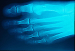 x-ray of post-op, post-opertative bunion on right foot