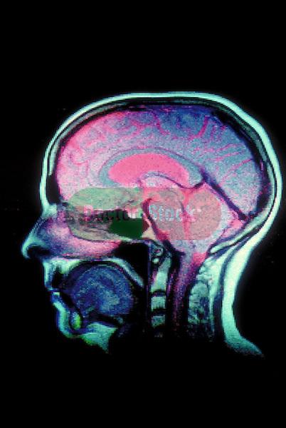 profile scan of human brain