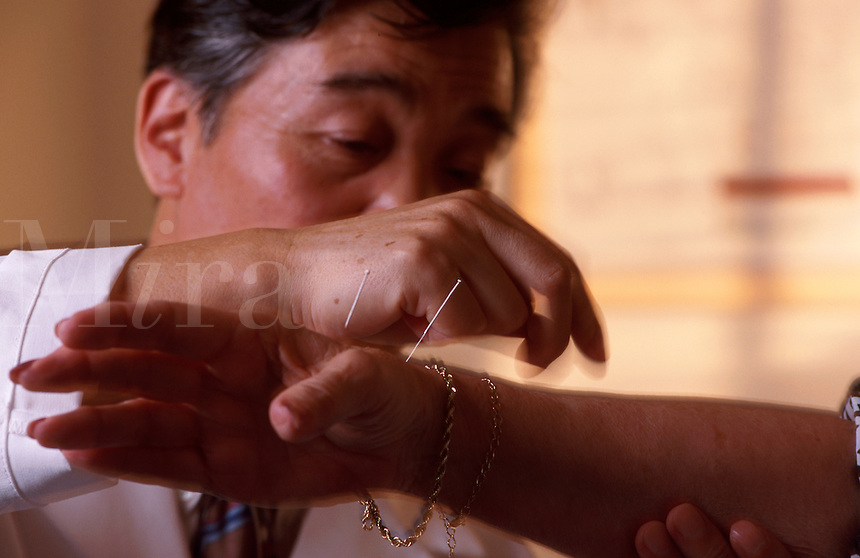 A male practitioner of traditional Chinese medicine (TCR) performs acupuncture on a patient.
