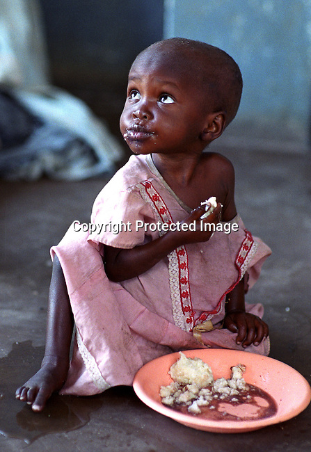 dicomal00012 Malawi. An unidentified child on June 11, 2002 at Mchoka Health Center in Zuwala in Salima district in Malawi. She  comes daily to eat at the clinic with her mother. Salima district is one of the worst affected of the food crisis in Malawi and has been hit by drought and flooding recently..©Per-Anders Pettersson/iAfrika Photos.