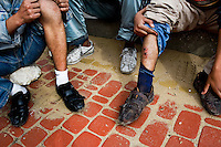 A young Moroccan immigrant shows injuries caused by Police beating and brutal treatment in Tanger, Morocco, 22 October 2006. Every day tens of Moroccan young men try to cross ilegally the Strait of Gibraltar. ?Harraga? (immigrants in Arabic) come to Tanger from all over Morocco. They try their good luck and hidden between the wheels of a truck they attempt to board on a ferry and get to Spain, eventually further to Europe. Considering the thorough checks at the port only few of them make it. Therefore they spend months living on a beach, in huts along the walls of the port, begging for food and waiting for the right night so as their dream about Europe came true.