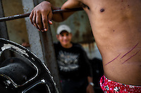 """A young immigrant, wounded by a fall of the train, stands on a wagon of the cargo train called 'La Bestia' (The Beast) on a train station in a border town of Arriaga, Mexico, 25 May 2010. Between 2010 and 2015, the US and Mexico have apprehended almost 1 million illegal immigrants from El Salvador, Honduras, and Guatemala. While the economic reasons remain the most frequent motivation for people from Central America to illegally immigrate to the US, thousands of Salvadorans, Guatemalans, and Hondurans, many of them minors, seek asylum in the US due to the thriving crime and gang-related violence in their region (known as the Northern Triangle). Taking an exhausting and risky journey, riding thousands of miles atop the cargo trains, facing a physical danger and extortion from the organized crime groups that control migrant routes, the """"undocumented"""" still flee to the US, looking for their American dream."""