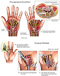 Bilateral Carpal Tunnel Syndrome with Release Surgery.