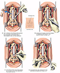 This medical exhibit depicts a decompression laminectomy procedure at L3-4, L4-5 leading to a surgical discectomy at L5-S1. The illustrations depict the following surgical steps: A. Removal of the laminae and spinous processes to decompress the spinal cord; B. Hemifacetotomies of L3-4 and L4-5; C. Foraminotomies to decompress spinal nerve roots; and D. Removal of herniated and degenerated intervertebral disc material at L5-S1.