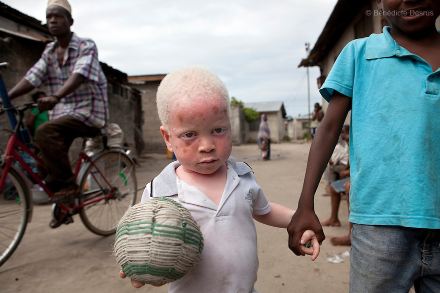 Dar es Salaam, Tanzania - Yusufu Sereman and his friend play footbal. Mwanahawa Yusufu is a 27 year old woman without albinism. She lives with her 2 year old albino son, Yusufu Sereman, in a 6 m2 rented room in Dar es Salaam. When she gave birth to Yusufu, her husband got very angry and left her saying that she had slept with a musungu, a white man. Since then, she has never heard from him. Mwanahawa survives as a single parent roasting and selling Cassava and other small food items. Her son Selemani already has badly damaged skin from exposure to the sun, but she cant get him treat because she has difficulties to pay for the treatments. Usually developing by a very young age a facial rash of dark melanomas is often the precursor of the skin cancer that kills so many albinos in early adulthood. Albinism is a recessive gene but when two carriers of the gene have a child it has a one in four chance of getting albinism. Tanzania is believed to have Africa' s largest population of albinos, a genetic condition caused by a lack of melanin in the skin, eyes and hair and has an incidence seven times higher than elsewhere in the world. Over the last three years people with albinism have been threatened by an alarming increase in the criminal trade of Albino body parts. At least 53 albinos have been killed since 2007, some as young as six months old. Many more have been attacked with machetes and their limbs stolen while they are still alive. Witch doctors tell their clients that the body parts will bring them luck in love, life and business. The belief that albino body parts have magical powers has driven thousands of Africa's albinos into hiding, fearful of losing their lives and limbs to unscrupulous dealers who can make up to US$75,000 selling a complete dismembered set. The killings have now spread to neighboring countries, like Kenya, Uganda and Burundi and an international market for albino body parts has been rumored to reach as far as West Africa.