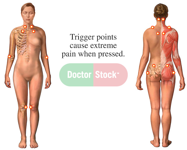 This medical exhibit identifies the trigger points associated with fibromyalgia syndrome (FMS), or myofascial pain syndrome. The pressure points are indicated and on two views, anterior (front) and posterior (back), of the female figure.