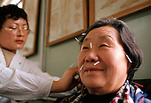 Facial acupuncture for head problems...Photo taken March 2000