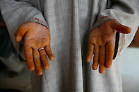 Hands of worker after working with saffron. Pampore, Kashmir, India. © Fredrik Naumann/Felix Features