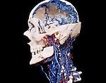 Corrosion cast of blood vessels in the human head and neck with most bones intact.